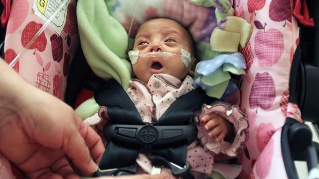 """PHOTO: """"Miracle Baby"""" sent home from hospital"""