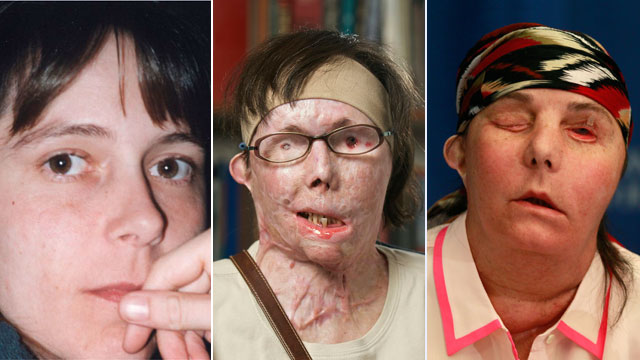 PHOTO: Carmen Blandin Tarleton, of Thetford, Vt, underwent a transplant in February after a 2007 attack in which her estranged husband doused her with industrial strength lye, burning more than 80 percent of her body.
