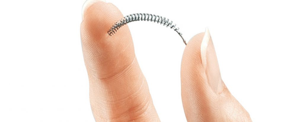PHOTO: This product image provided by Bayer Healthcare Pharmaceuticals, Inc. shows the birth control implant called Essure.
