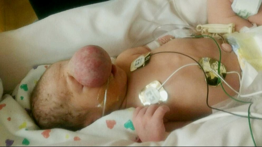 PHOTO: Zakary Riegel was born with a congenital bony defect in his skull.
