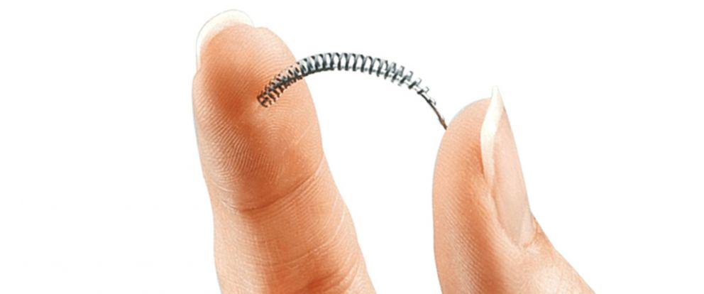 PHOTO: This image provided by Bayer Healthcare Pharmaceuticals shows the birth control implant Essure.