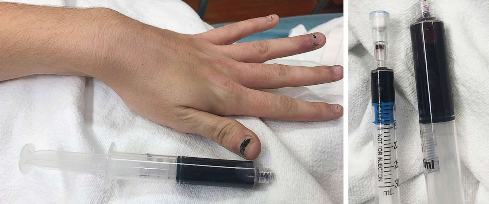 PHOTO: A 25-year-old Rhode Island womans blood turned navy blue after taking large amounts of an over-the-counter medication containing benzocaine.