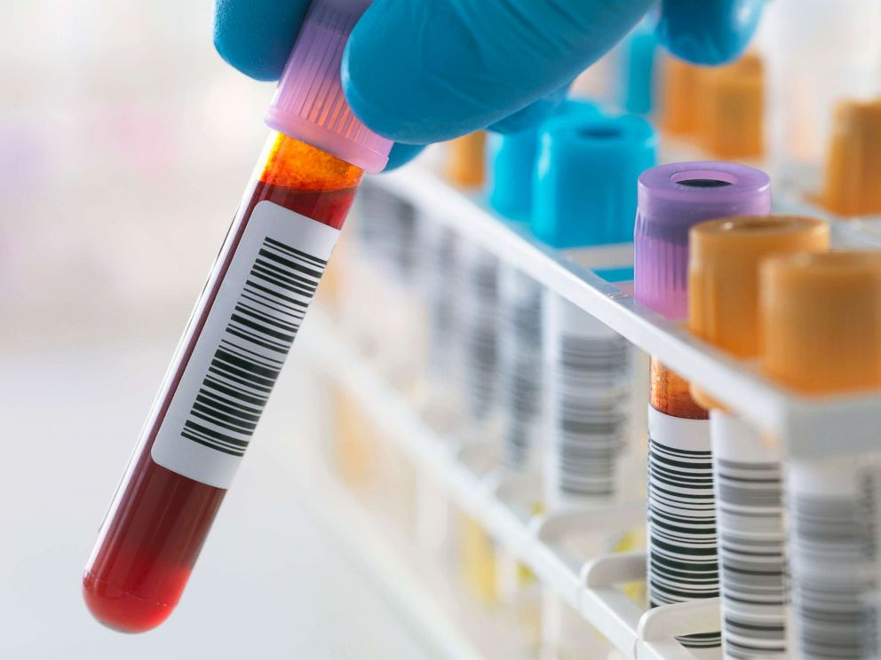 Blood samples are seen here in a stock photo.