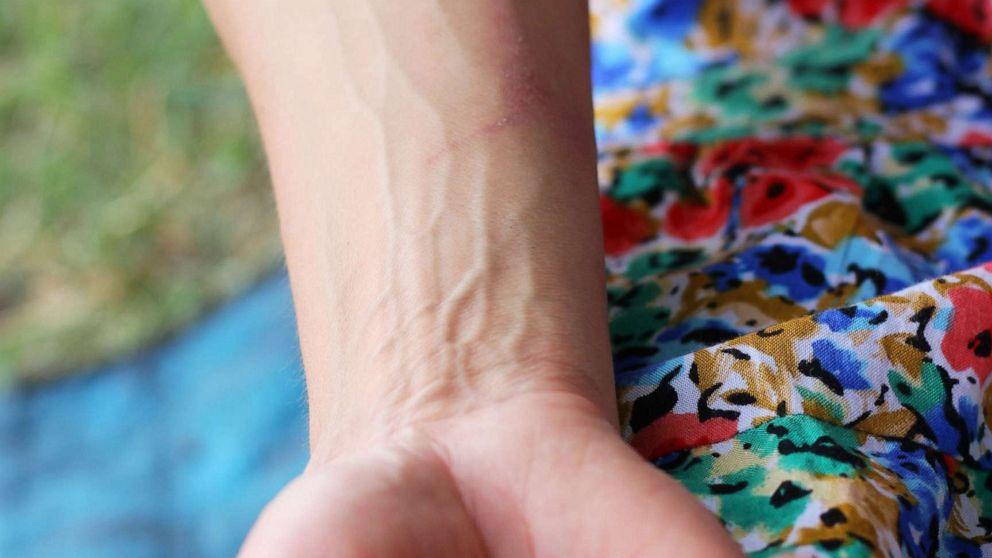 Women's blood vessels age faster than men's: Study