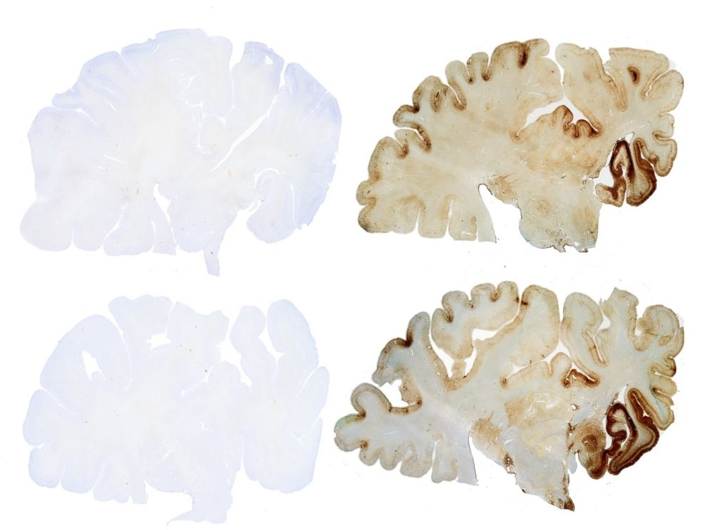 PHOTO: A control brain, left, contrasted with a brain that has CTE, right.