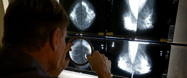 Breast Cancer Care Becomes Troubling Casualty Of Covid 19 Pandemic