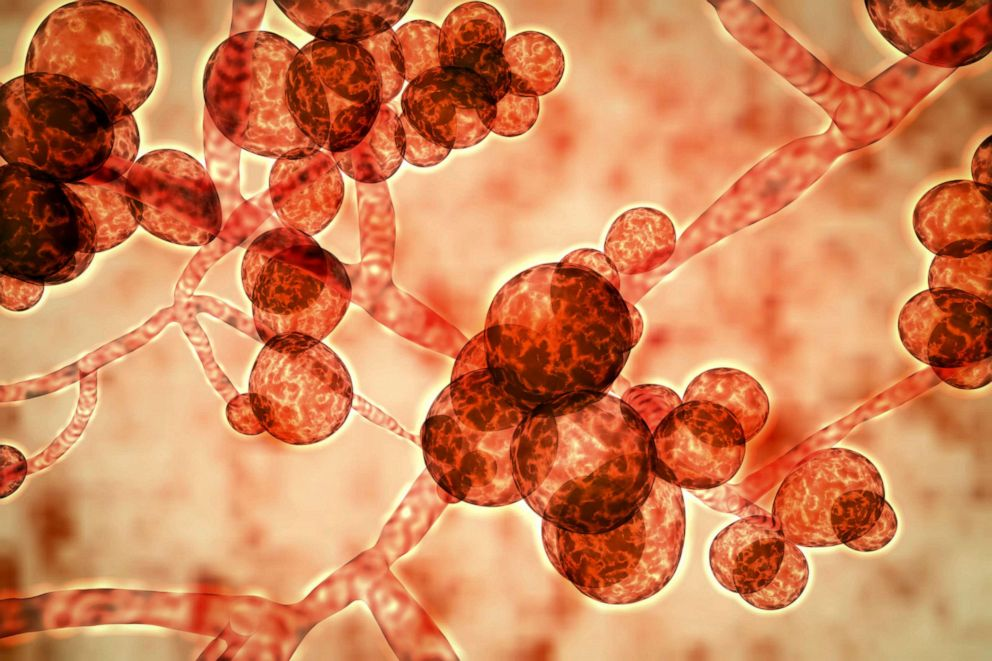 PHOTO: Computer illustration of the unicellular fungus (yeast) Candida auris.