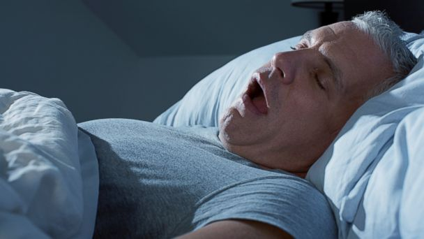 PHOTO: Persistent snoring could be a sign of sleep apnea.