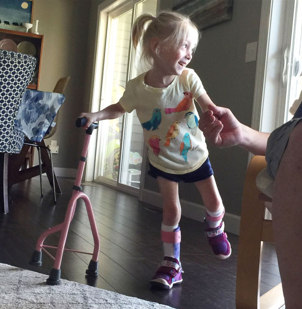 Touching video captures 4-year-old's first steps after life-changing surgery