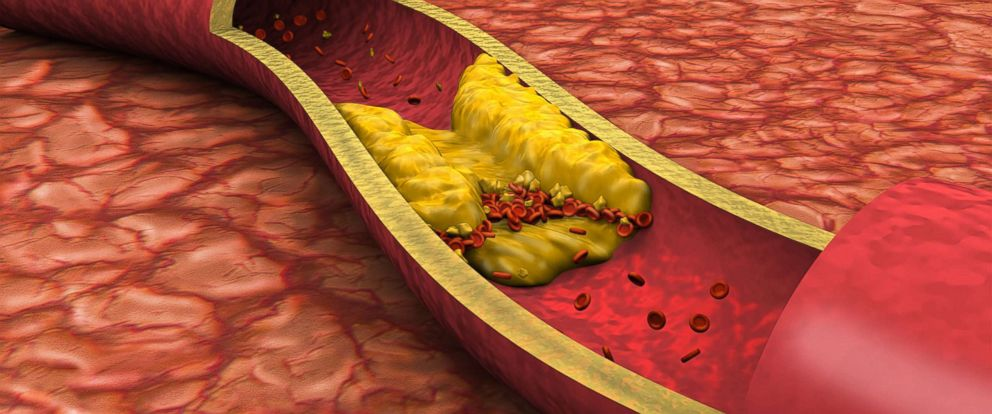 PHOTO: A three-dimensional rendering shows fat deposits that have formed a clot in an artery.