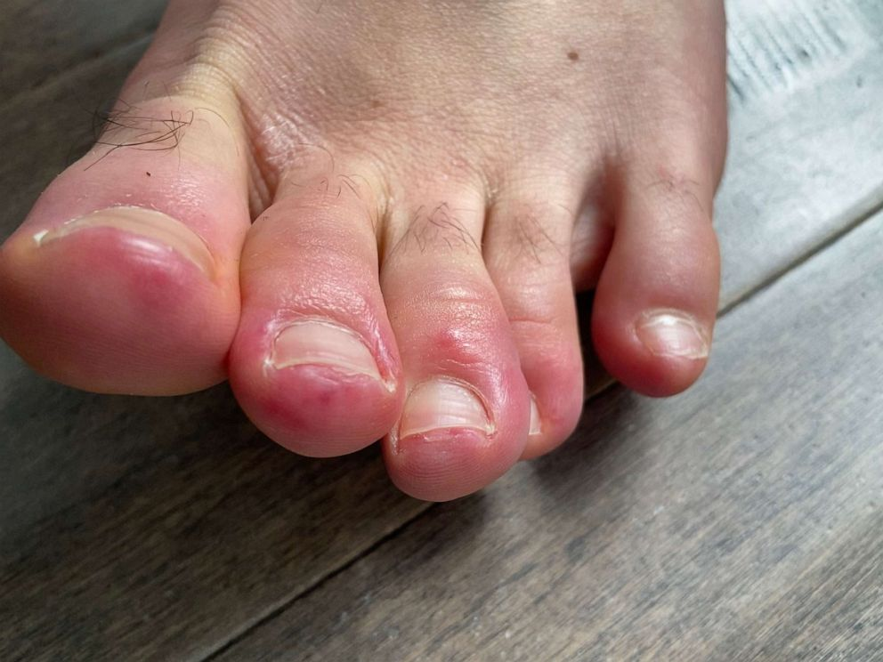COVID Toes': Could skin conditions offer coronavirus clues? - ABC News