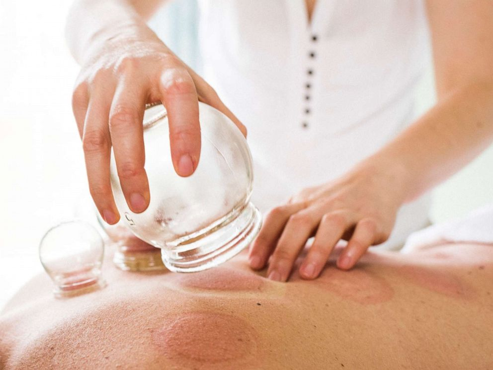 PHOTO: Photo of woman removing acupuncture cups from womans back. Alternative Medicine. Cupping