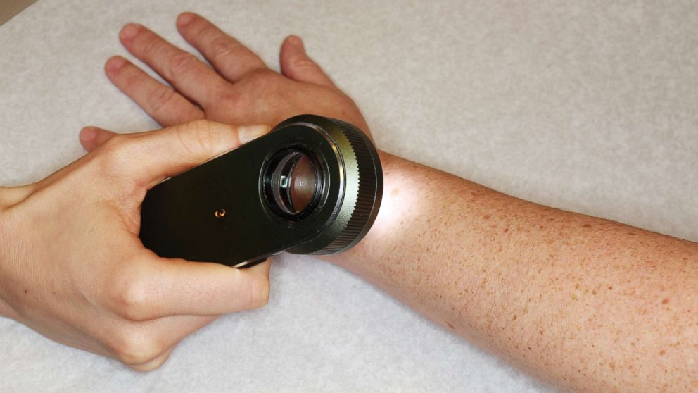 Detecting Skin Cancer Is A Handheld Magnifying Tool Better Than The Naked Eye Abc News