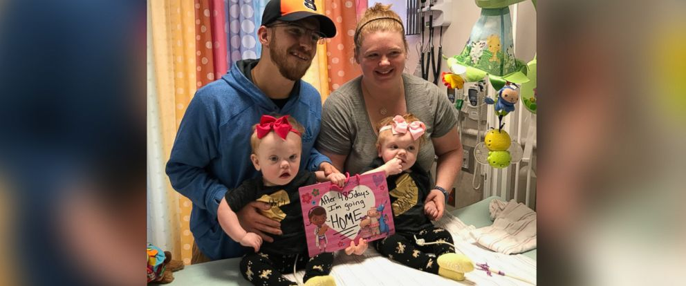PHOTO: A pair of formerly conjoined twins are being discharged from the hospital just in time for Thanksgiving after a successful surgery to separate them.