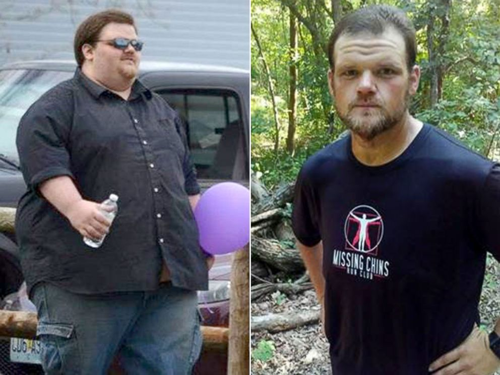 PHOTO: Justin Lacy is pictured before and after the weight loss he achieved as a member of the Missing Chins Run Club.