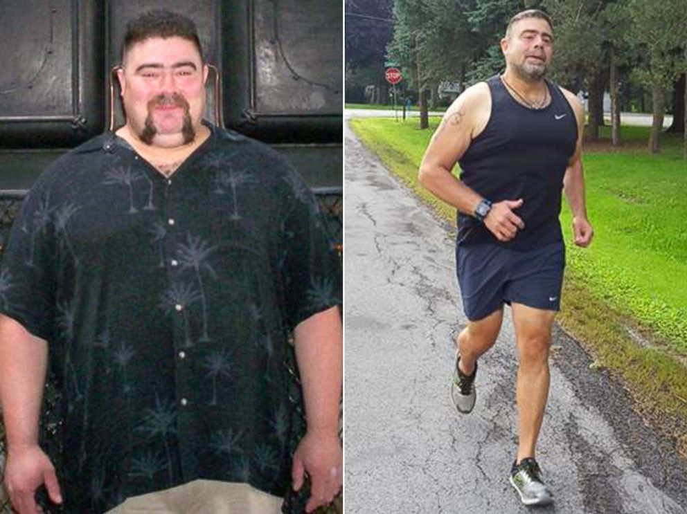 PHOTO: Tim Kaufman is pictured before and after the weight loss he achieved as a member of the Missing Chins Run Club.
