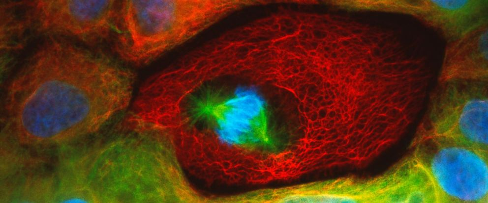 PHOTO: Immunofluorescent light micrograph of human colon cancer cells.
