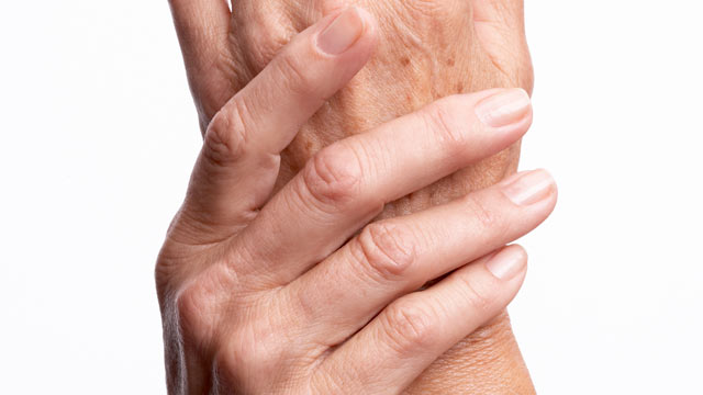 PHOTO: Despite the common belief that arthritis only affects the elderly, nearly two-thirds of people with arthritis are younger than 65.