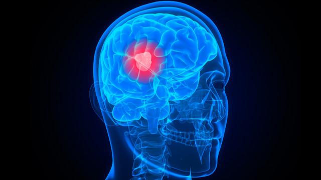 PHOTO: Brain cancer