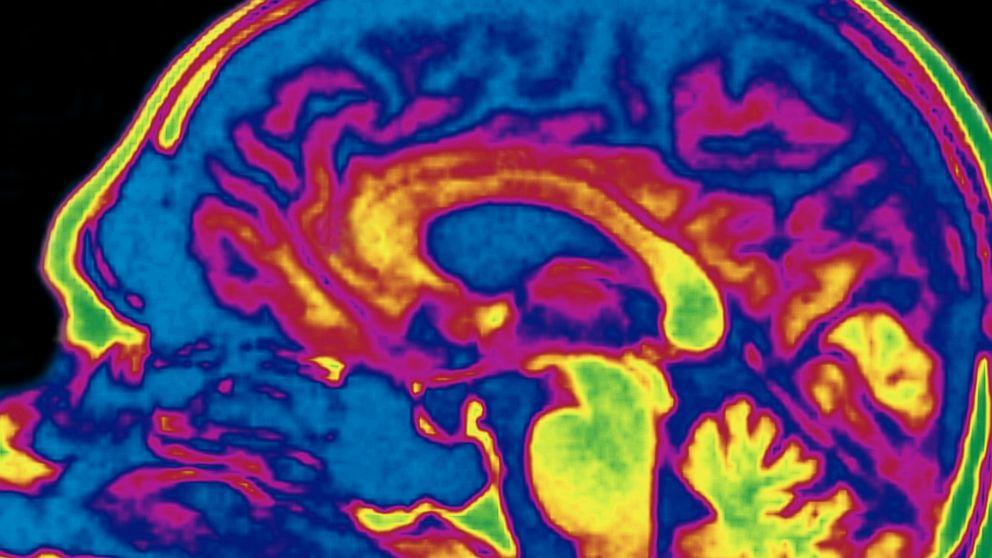 Ways Sex Affects Your Brain - ABC News