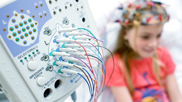 PHOTO: Researchers at Boston Childrens Hospital used EEGs, tests that measure electrical activity in the brain, to compare the brains of 430 children with autism and 554 normal children between the ages of 2 and 12.