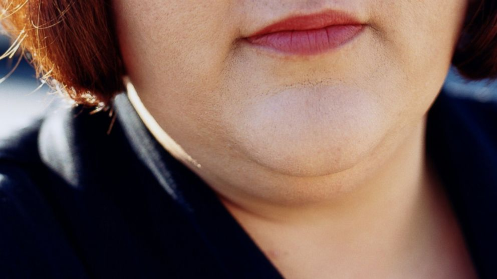 fda approves double chin eliminator injection abc news