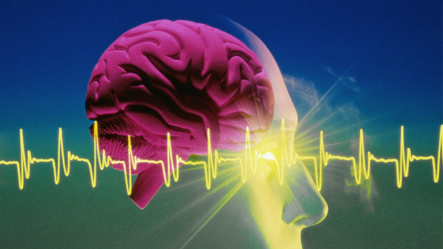 PHOTO: EEG and human brain graphic