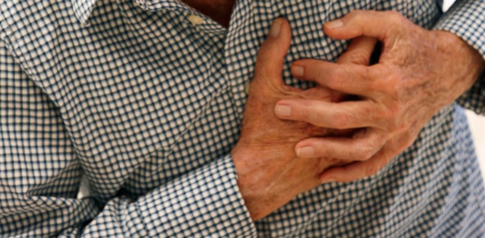 """PHOTO: A new study sheds light on the rare """"broken heart"""" syndrome."""