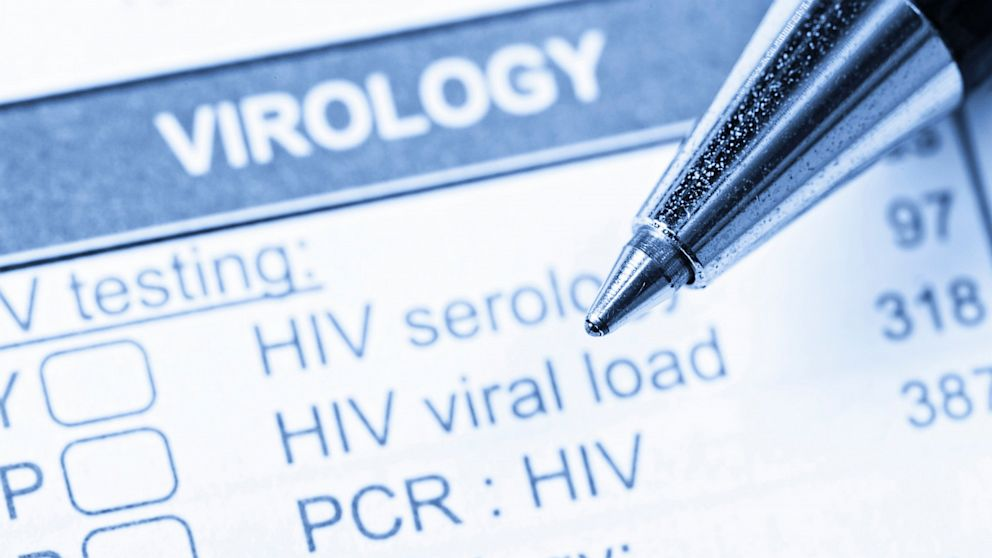 HIV in the era of COVID-19: Why experts are concerned about an increase in cases thumbnail