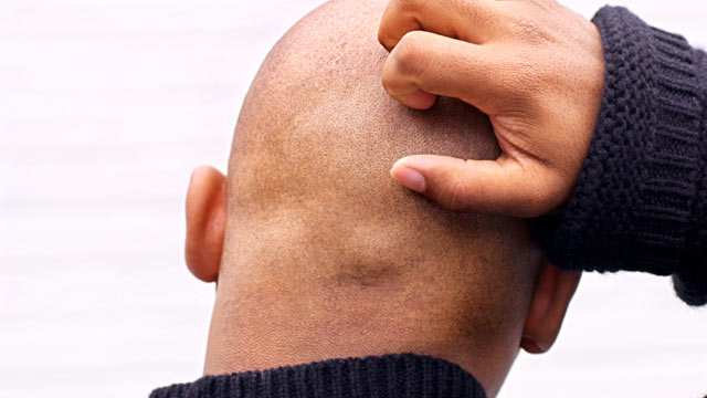 PHOTO: The cause of itchiness has been discovered by scientists.