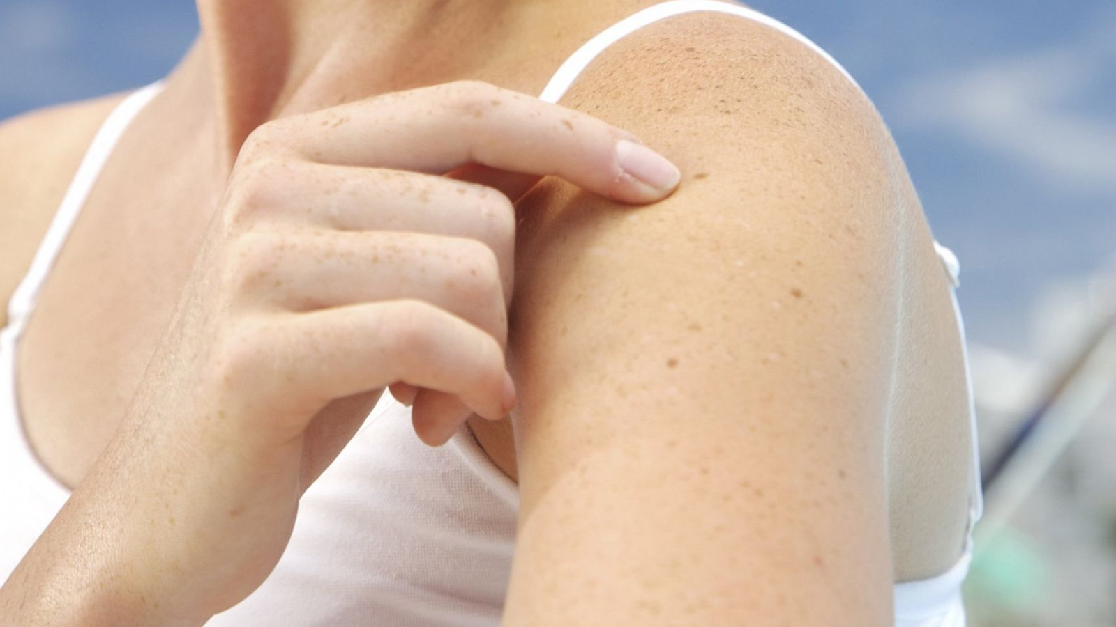 How To Perform A Self Exam For Skin Cancer Abc News