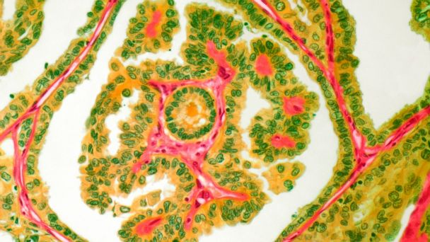 Staging in cancer pathologists breast