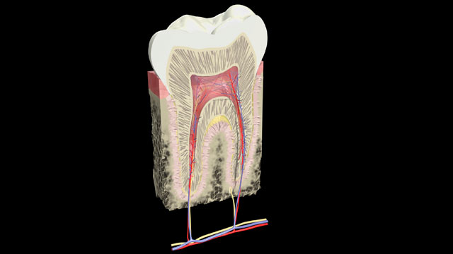 PHOTO: Dentists are now detecting microcavities with technology far more sensitive than the X-ray really need to be treated.
