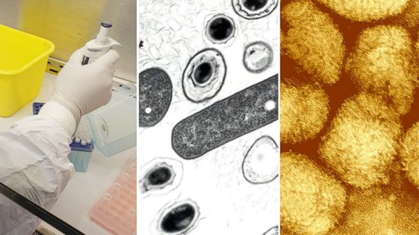 PHOTO: A technician conducts tests for the H7N9 bird flu virus at the Kunming Center for Disease Control (CDC) in this April 10, 2013, file photo in Kunming, China, left, bacillus anthracis vegetative cells and spores, center, and smallpox, right.