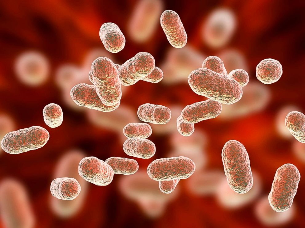 Can Bacteria In Your Gut Explain Your >> How The Bacteria In Your Gut Affect Your Mind And Body Abc News
