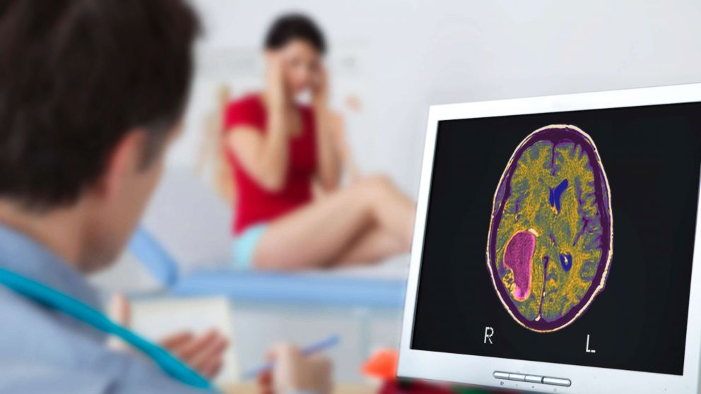 Electric fields therapy shows promise for brain cancer patients: study