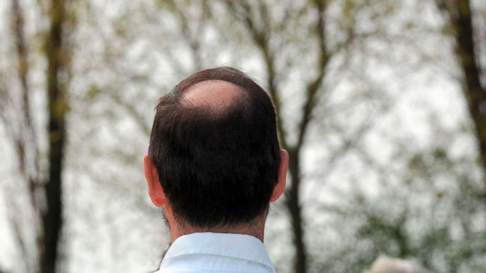 This stock photo depicts a balding man.