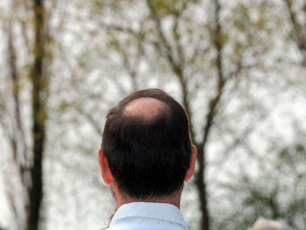 PHOTO: This stock photo depicts a balding man.