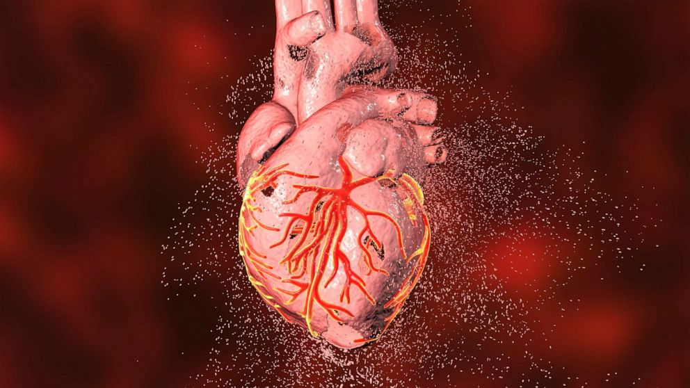 The new health struggle for COVID-19 patients: Heart failure