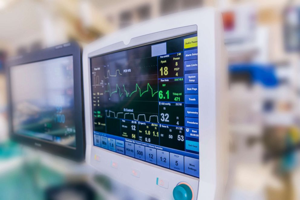 Monitors in the operating room during heart valve replacement surgery