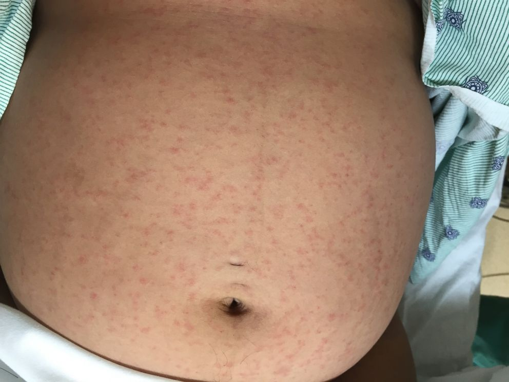 PHOTO: The first person to be infected in a Florida outbreak of Zika was a pregnant woman, who showed up to the hospital with a rash on her stomach.
