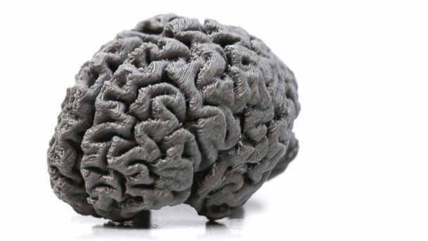 PHOTO: A 3-D printing of Patient HM's brain.