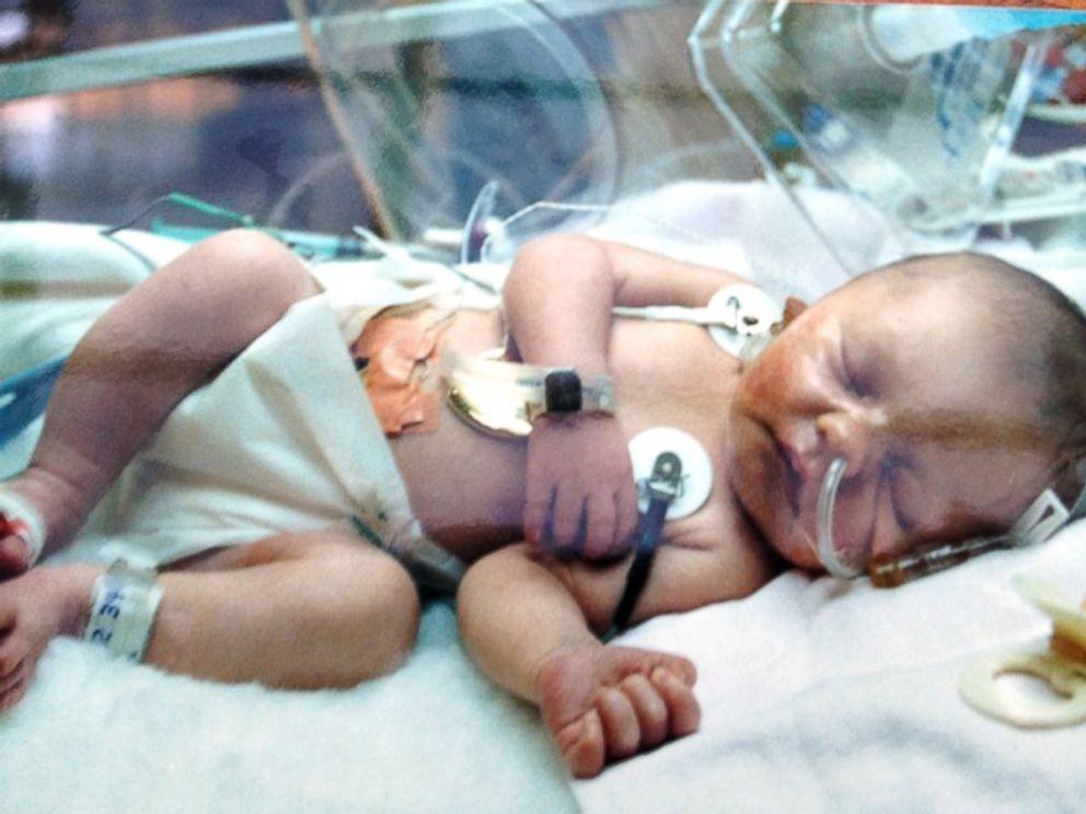 PHOTO: Kami Sutton has undergone 19 heart surgeries.