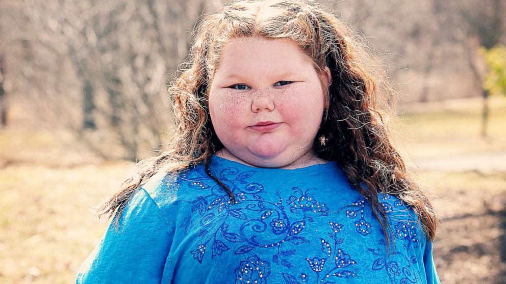 Always Hungry Girl Gets Childhood Back After Weight Loss Surgery