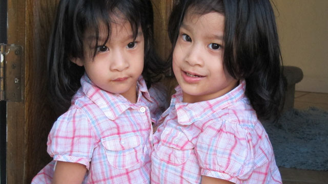 PHOTO: Angelica and Angelina Sabuco, now two years old, were born joined at the chest and abdomen