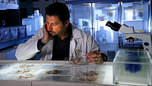 """PHOTO: Dr. Jacopo Annese, director of the Brain Observatory at University of California San Diego, examines slides of Molaisons brain. A 3-D digitized version of Molaisons brain was uploaded into an online """"Atlas"""" for other researchers."""
