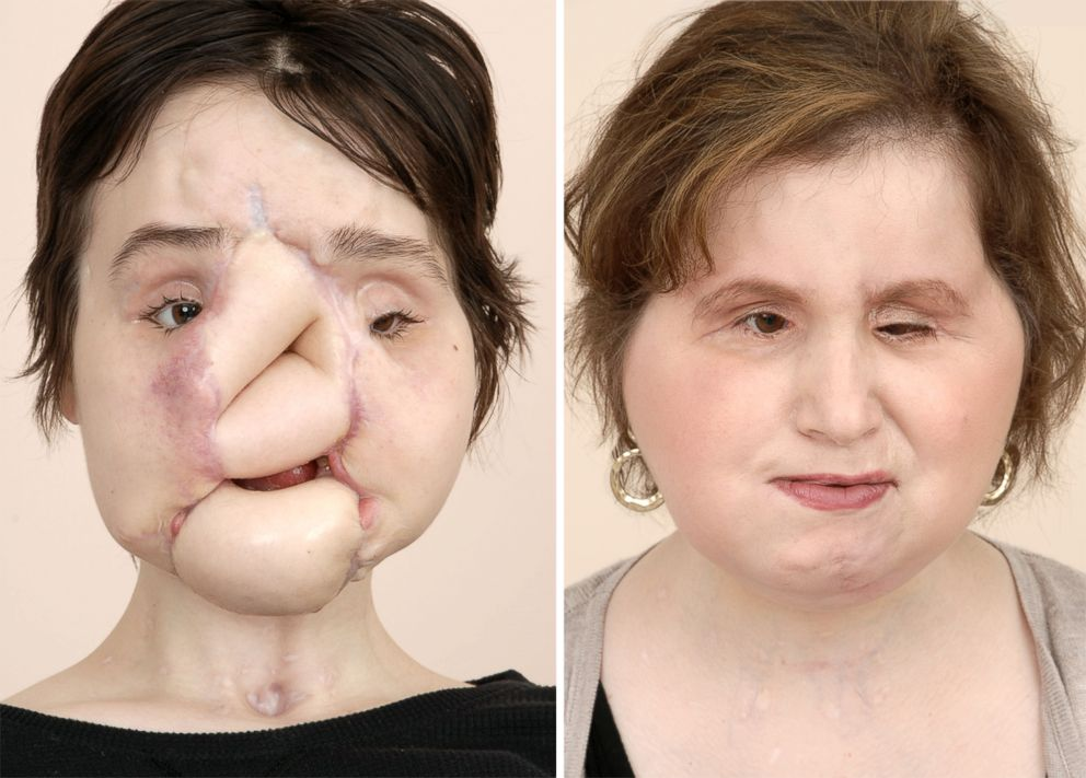 Katie Stubblefield is seen here before and after her multiple surgeries, including a face transplant procedure.