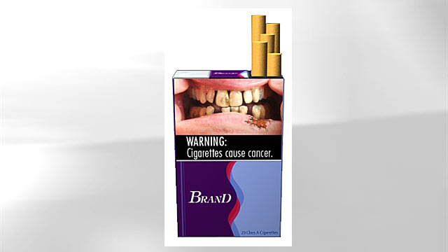 PHOTO:A proposed graphic health warning for cigarette packages and advertisements suggests the increased risk of health problems among smokers by depicting a man whos teeth has decayed.