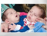 PHOTO Irish-born conjoined twins Hassan and Hussein Benhaffaf are shown in this file photo.