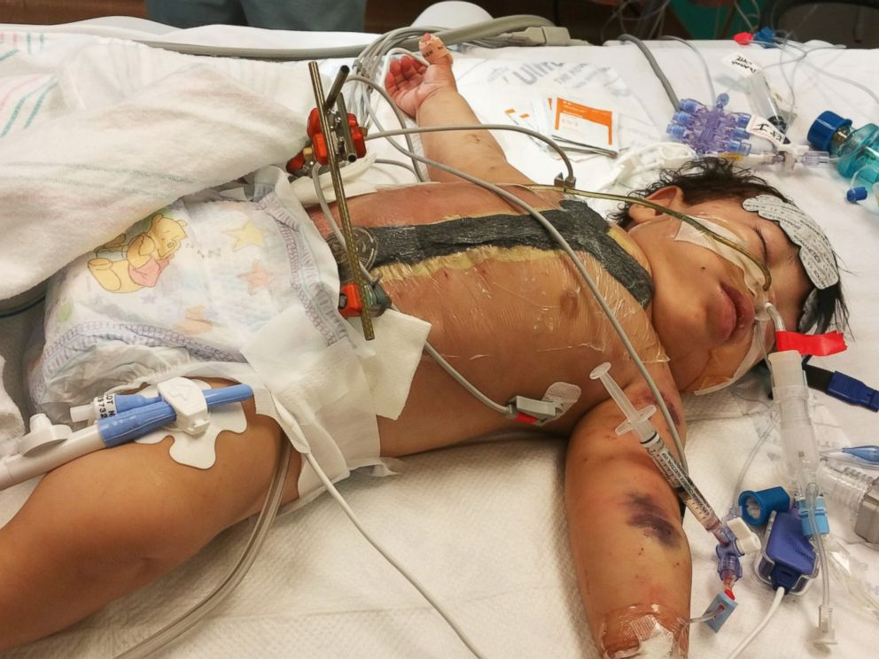PHOTO: Adeline Mata, shown here after separation surgery at Texas Childrens Hospital.